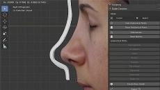 Planejamento de Rinoplastia Digital 3D com o RhinOnBlender